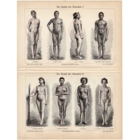 Man's body, color print 1905